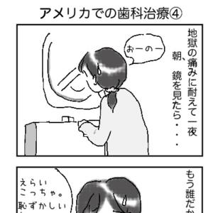 アメリカでの歯科治療④